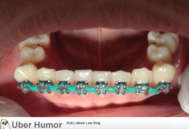 Braces Quotes Awesome Wttf The Result Of Wearing Fake Braces  Funny Pictures Quotes