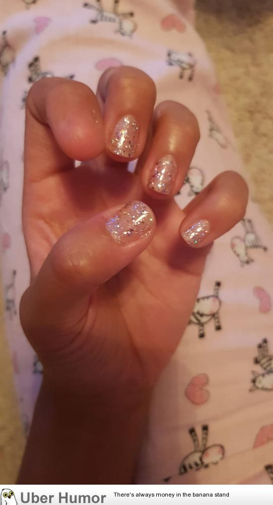 My GF was born without a nail. | Funny Pictures, Quotes, Pics ...